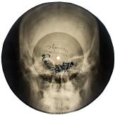 skull rib